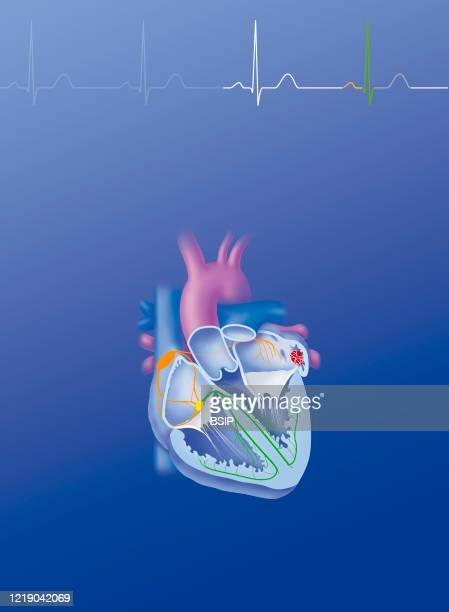 Site of action of drugs in the treatment of atrial fibrillation. Heart seen in section with a thrombus of the left auricle, showing the cardionector...