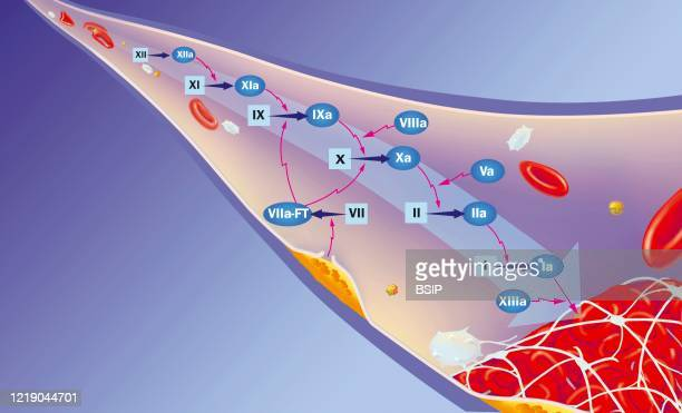 Sites of action of anticoagulants on the coagulation cascade. Blood vessel with coagulation factors inducing the coagulation cascade to the clot at...