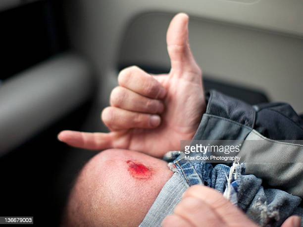 skateboarders wound - leg wound stock pictures, royalty-free photos & images