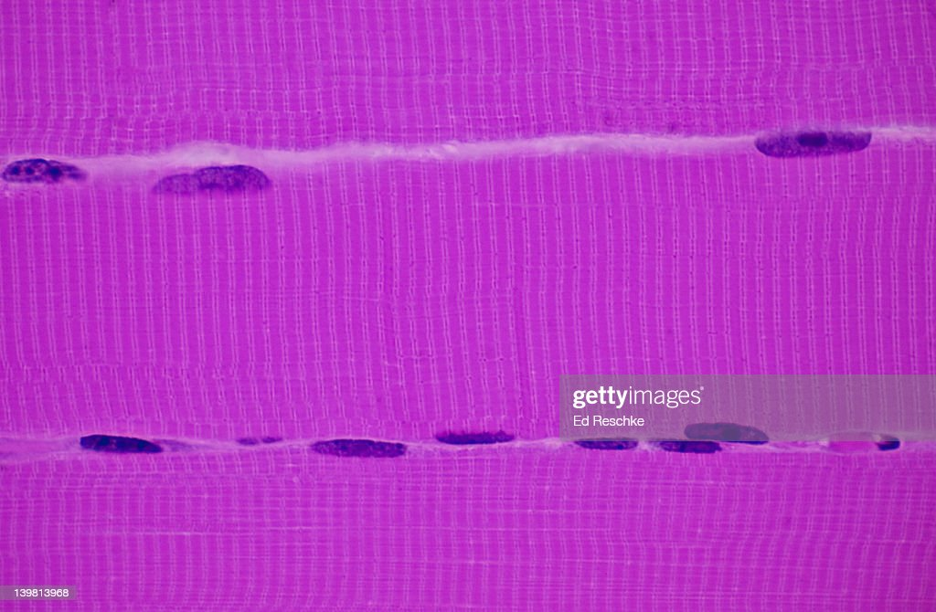 Skeletal Muscle Fibres Showing Three Muscle Fibres Or Cells