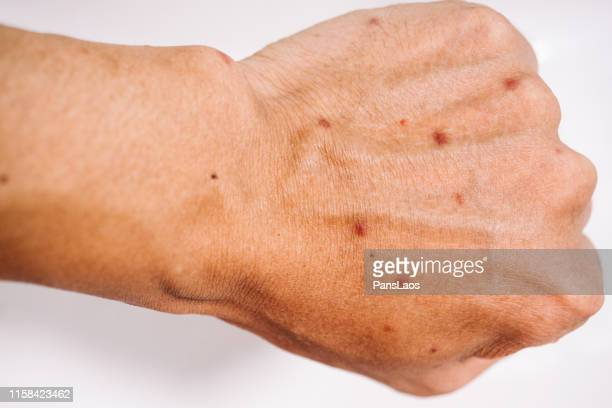skin allergy of mosquito bite on hand - dermatitis fotografías e imágenes de stock