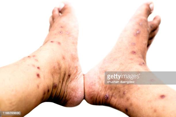 skin allergy with dermatitis problem of rash ,allergy rash and health problem - orticaria foto e immagini stock