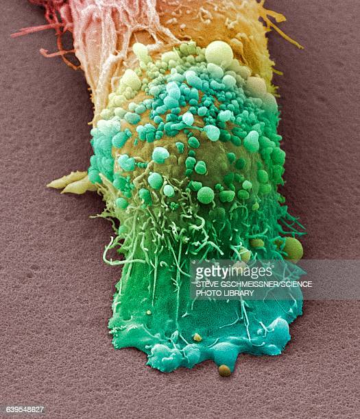 skin cancer cell, sem - melanoom stockfoto's en -beelden