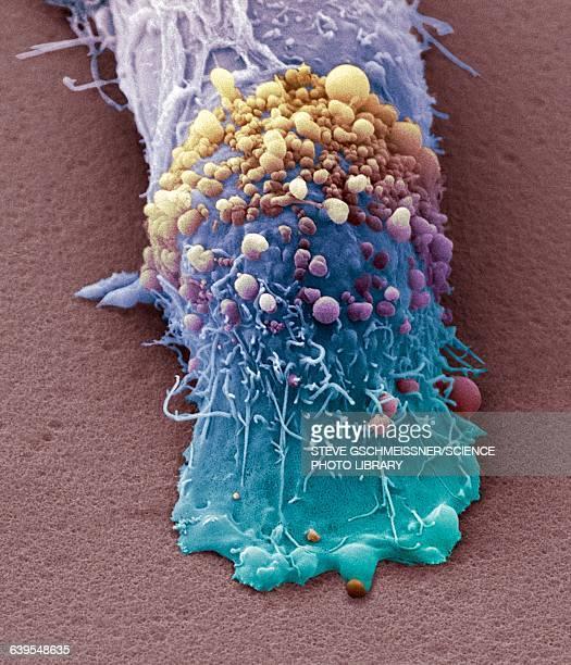 skin cancer cell, sem - melanina - fotografias e filmes do acervo