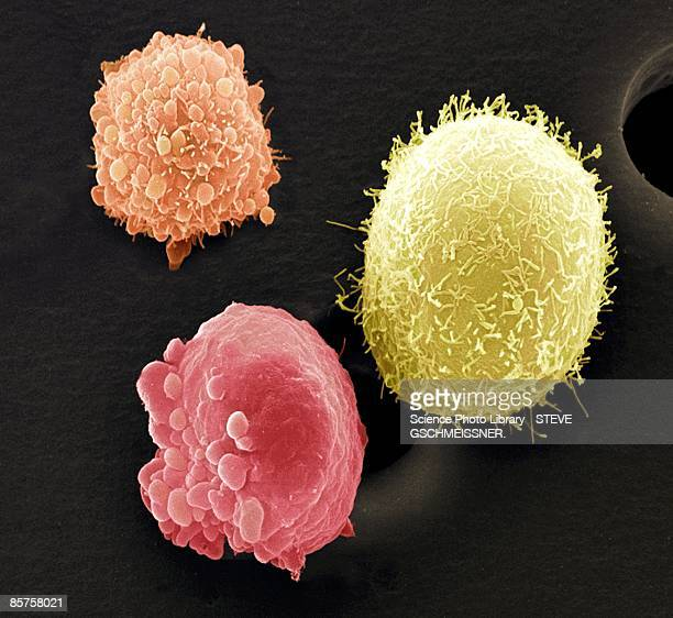 Skin cancer cells, colored scanning electron micrograph (SEM)