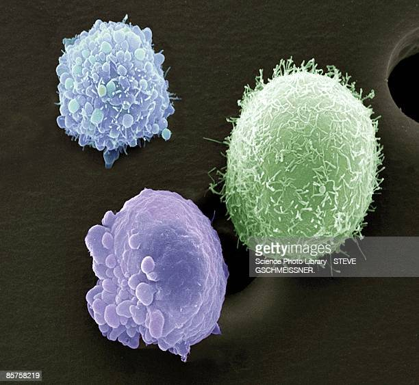 Skin cancer cells, scanning electron microscope (SEM)