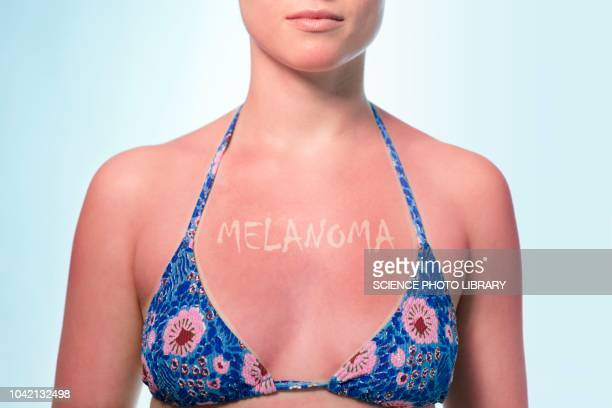 skin cancer from sun damage, conceptual image - huidkanker stockfoto's en -beelden
