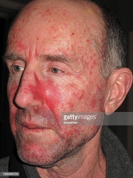 skin cancer treatment - basal cell carcinoma stock photos and pictures