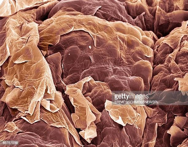 skin, colored scanning electron micrograph (sem) - sem stock pictures, royalty-free photos & images