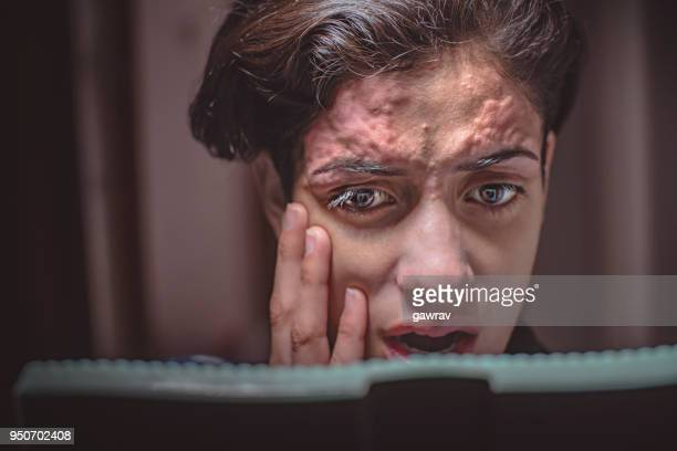 skin inflammation on forehead due to threading. - hand injury stock photos and pictures