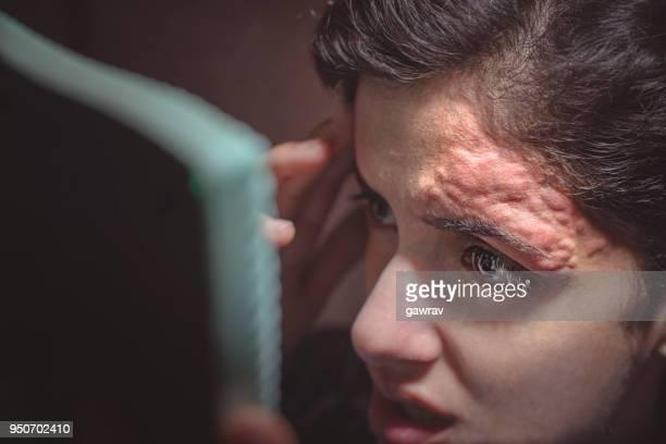 スレッド処理により額の皮膚の炎症。
