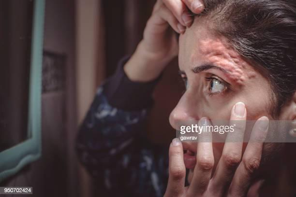 Entzündungen auf Stirn durch Einfädeln der Haut.