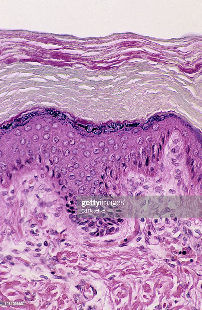 Skin Layers Of The Epidermis Human Thick Skin 100x At 35mm Shows