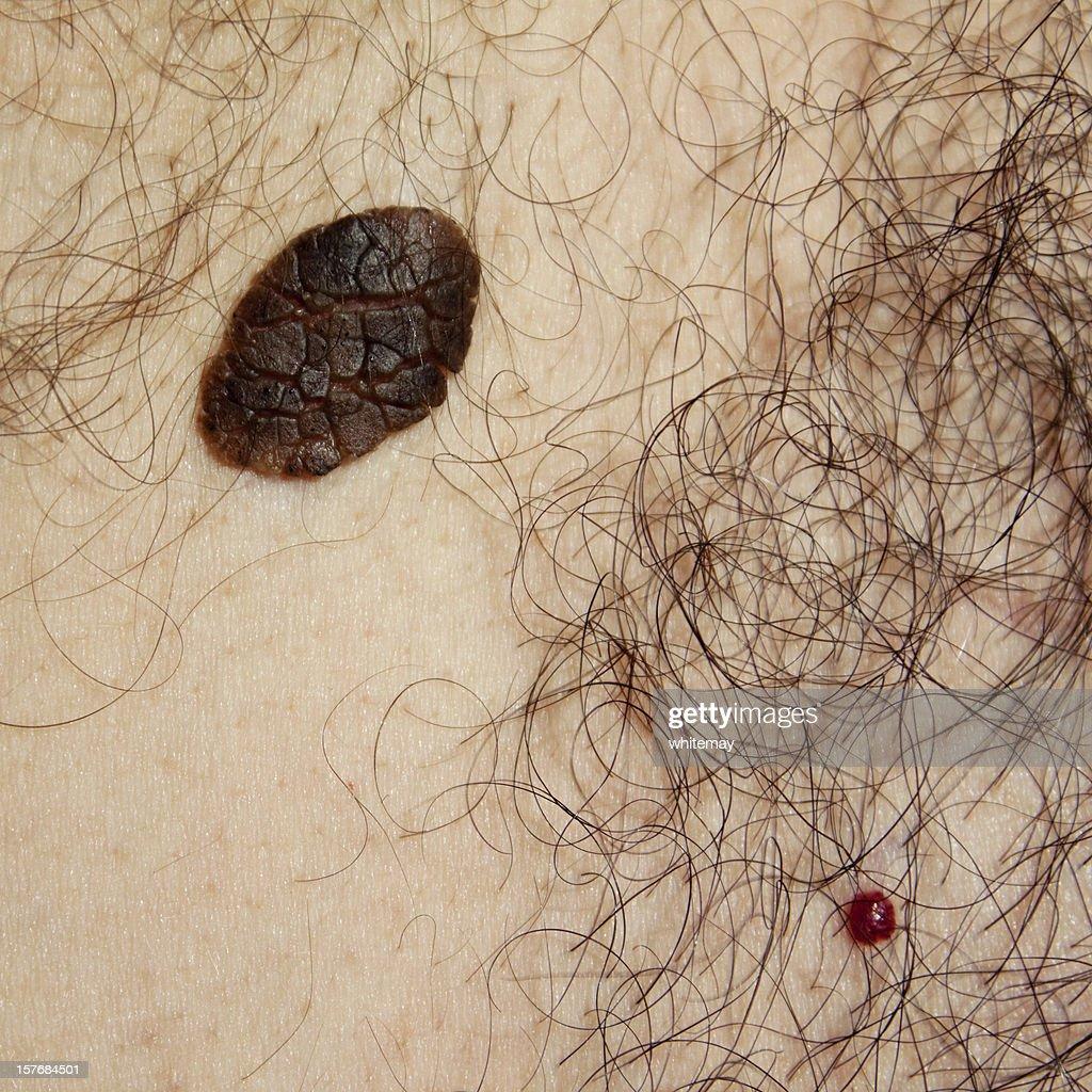Skin problems - Seborrhoeic Keratosis and Cherry Angioma : Stock Photo