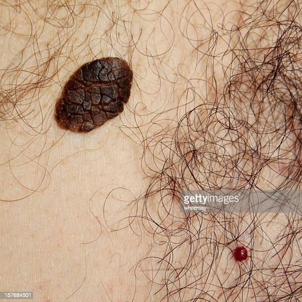 skin problems - seborrhoeic keratosis and cherry angioma - cyst stock photos and pictures