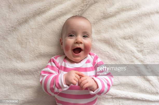 skin rashes in babies concept - eczema stock pictures, royalty-free photos & images