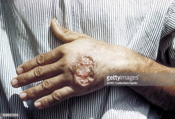 Skin ulcer due to leishmaniasis, hand of Central American adult. Image courtesy CDC/Dr. D.S. Martin. 1981. .