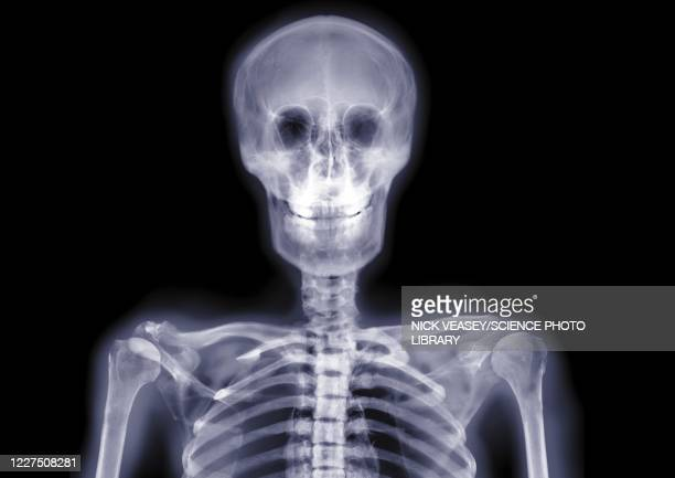skull and shoulders smiling, x-ray - limb body part stock pictures, royalty-free photos & images