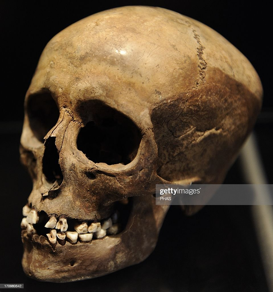 Skull of a young girl. 16 years old. 3500-3400 BC. : News Photo