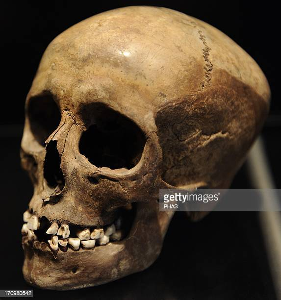 Skull of a young girl 16 years old 35003400 BC Sigersdal Mose Northern Zealand National Museum of Denmark Copenhagen Denmark