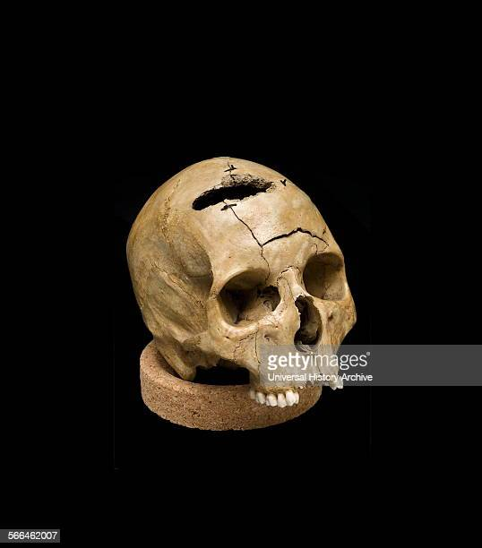 Skull showing keyhole gunshot trauma about 18611865