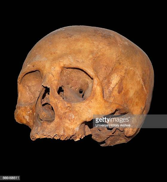 Skull showing perforation of ethmoid bone to give access to the brain 1300 BC Upper Egypt found by Baroness Amherst 1909