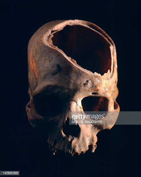 Skull showing the trepanation practiced by the Indians from Peru PreInca Paracas Civilization 6th Century BC Lima Museo Nacional De Antropologia...