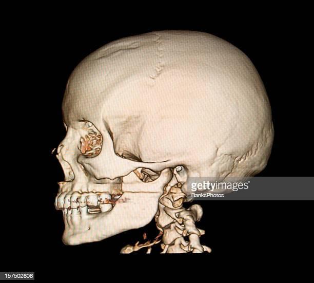 3D Skull Side View CAT Scan