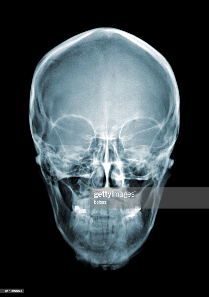 Skull Stock Photos And Pictures Getty Images