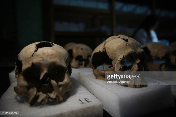 Skulls which were found during an excavation work are seen in National Institute of Anthropology and History's laboratory in Mexico City Mexico on...