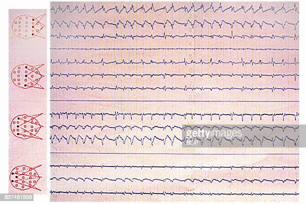 Sleep apnea seen on an EEG electroencephalogram