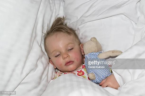 sleeping beauty - neurodermitis stock-fotos und bilder