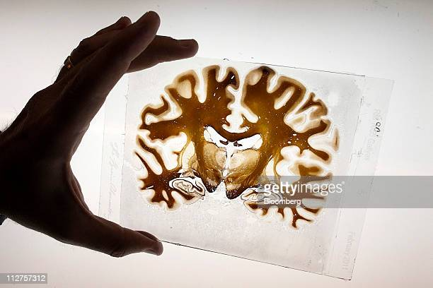 A sliced section of a human brain is displayed for a photograph at the Radiology Imaging Laboratory of The Brain Observatory at the University of...