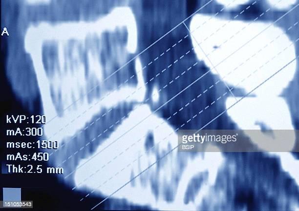 Slipped Disc At The Level Of The 5Th Lumbar Vertebra Mri In Saggital Section