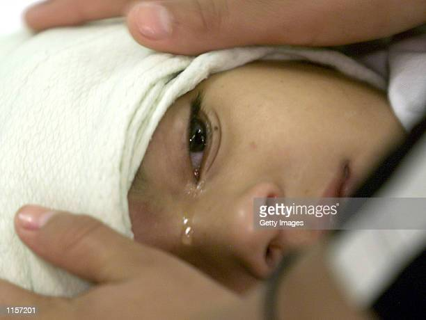 A small girl cries as her sister consols her July 23 2002 in Tegucigalpa Honduras She is one of hundreds of suspected cases of Hemorrhagic Dengue a...