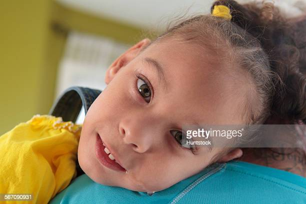 Small girl with Cerebral Palsy