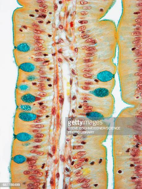Small intestine, LM