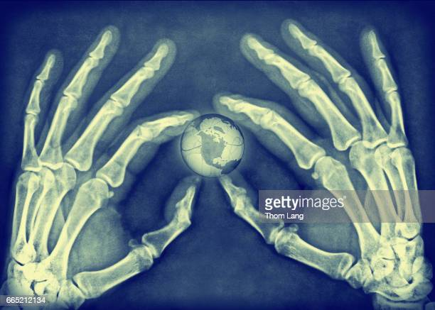 Small World in X-ray Hands