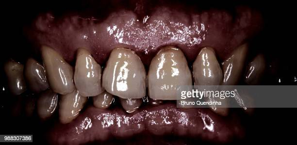 smile!! - gum disease stock photos and pictures