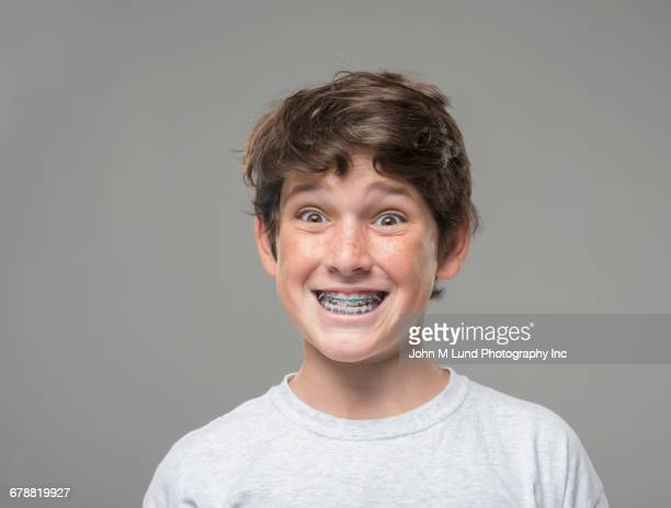 smiling caucasian boy with braces - brace stock pictures, royalty-free photos & images