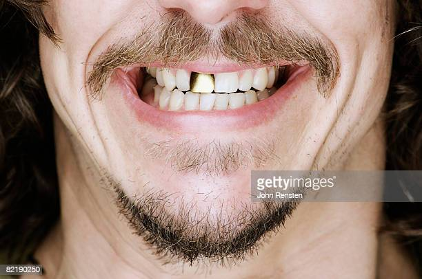 smiling gold tooth - gold tooth stock photos and pictures