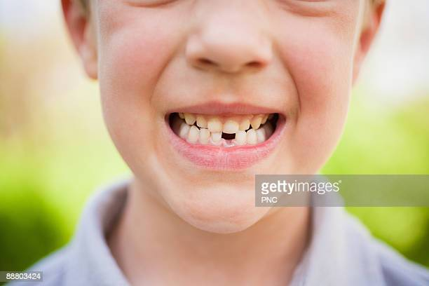 Smiling kid with mising tooth