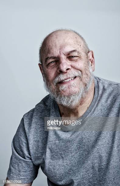 smiling senior man cancer chemotherapy patient - cancer de pele imagens e fotografias de stock
