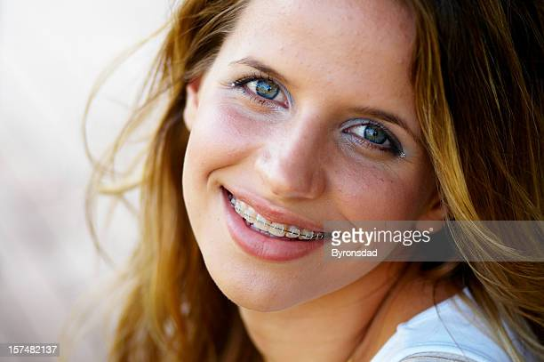 smiling teenage girl with braces - innocence stock pictures, royalty-free photos & images