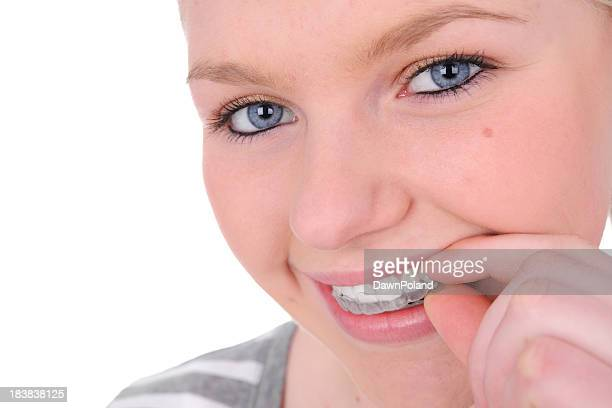 Smiling woman taking retainer from mouth on white background