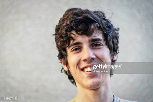 smiling young man with acne - imperfection stock pictures, royalty-free photos & images