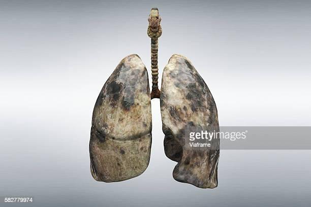 smoker's lung - cancro ai polmoni foto e immagini stock