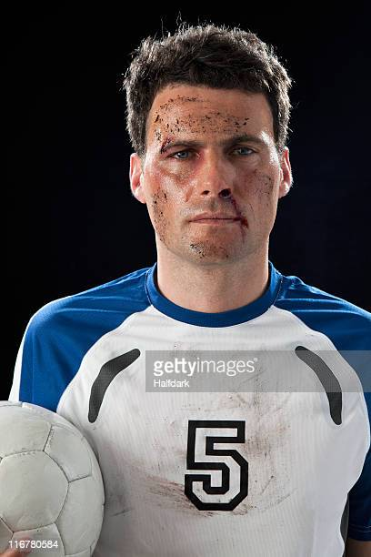 a soccer player with a bloody nose holding a soccer ball - fußballtrikot stock-fotos und bilder
