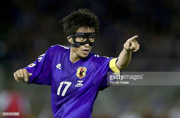 Japan Russia Tsuneyasu Miyamoto with his mask because of a broken nose