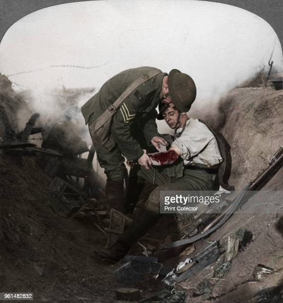 Soldier receiving first aid from a sergeant in a sap Battle of Peronne France World War I 19141918 Stereoscopic card detail Artist Realistic Travels...